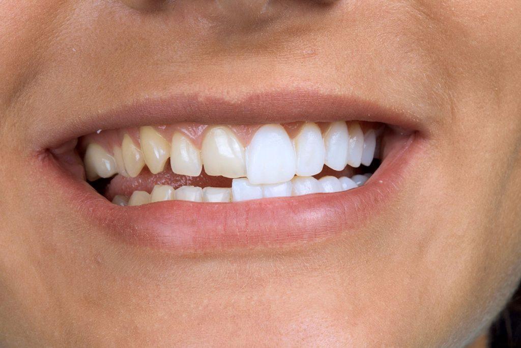 виниры при травме зуба